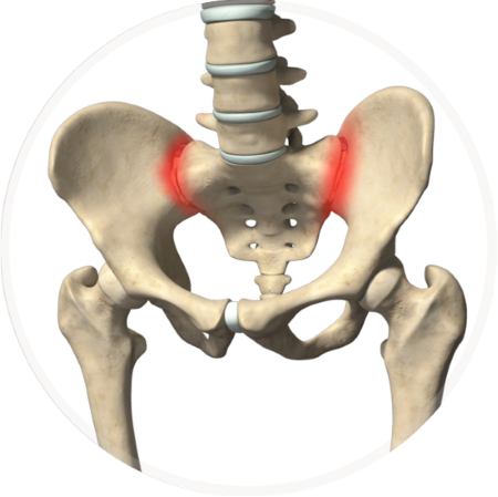 si-joint-dysfunction-image